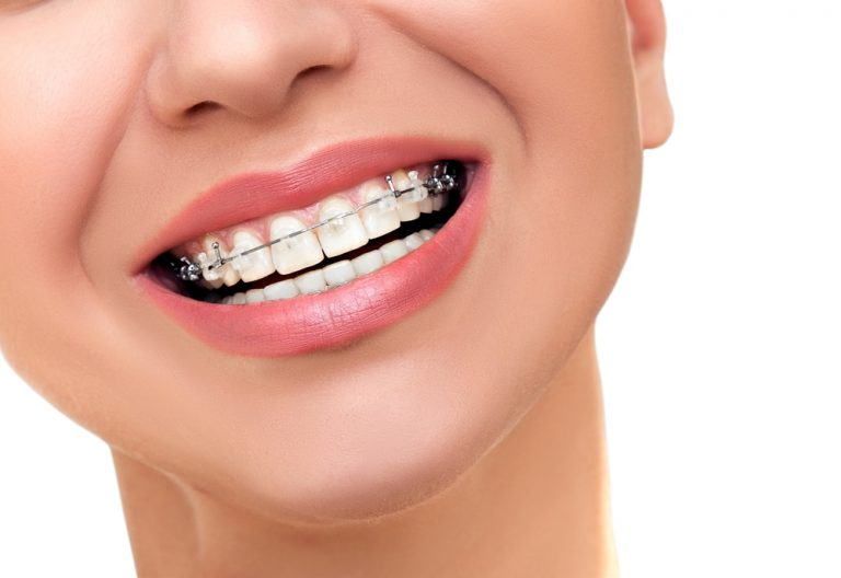 What you Might Not Know about Dental Braces