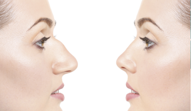 Rhinoplasty: Is It Right for You?