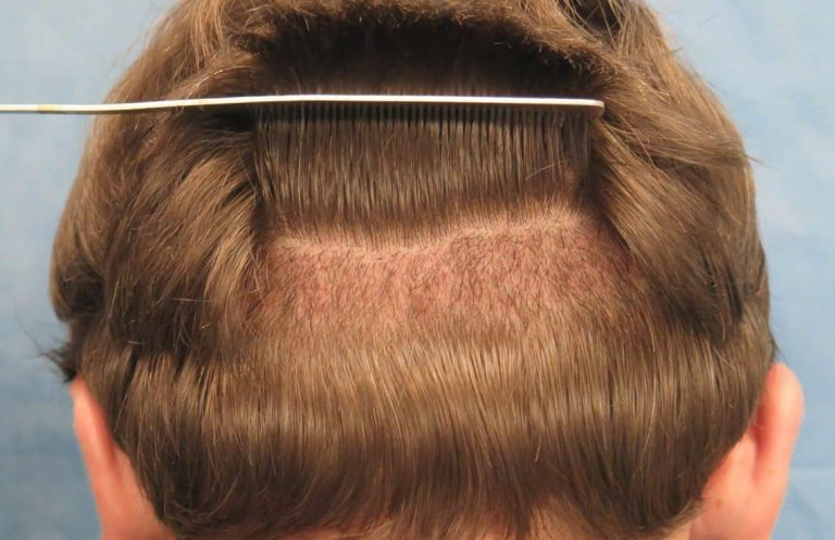 Finding An Expert For Hair Transplant In Singapore?
