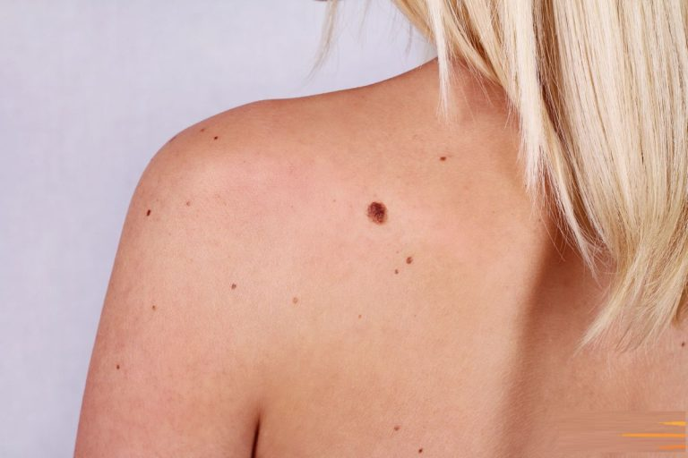 How to Identify Skin tags, Moles and Warts?