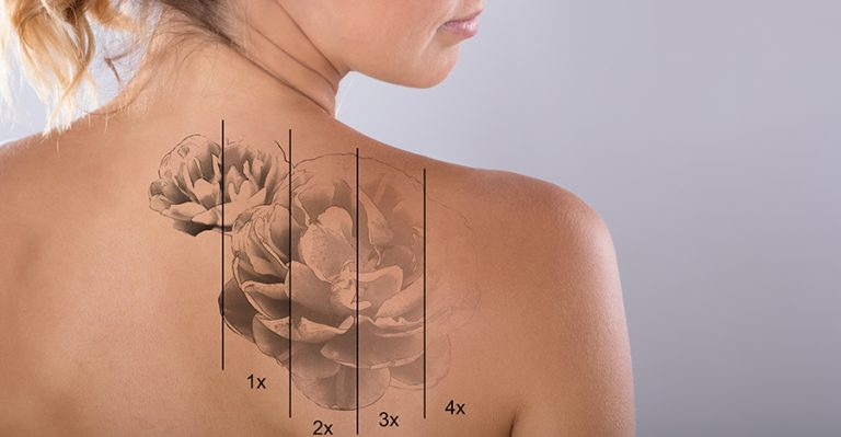 Seek Professional Assistance to Lighten Your Permanent Tattoo In A Painless Way