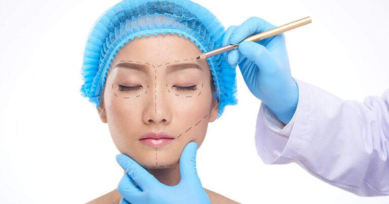 Cosmetic Plastic Surgery – All you Need to Know